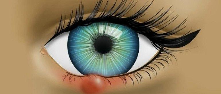 Как избавиться от ячменя на глазу