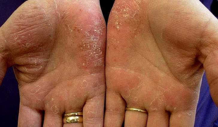 псориаз, псориаз лечение, псориаз фото симптомы и лечение, псориаз причины возникновения и лечение, псориаз симптомы и лечение у взрослых, псориаз лечение народными средствами в домашних условиях, негормональные мази от псориаза, лучшая мазь от псориаза, мазь против псориаза, мазь от псориаза +в домашних условиях