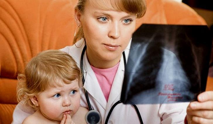 Пневмония – симптомы и лечение воспаления легких