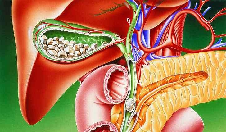 Желчекаменная болезнь, симптомы и лечение