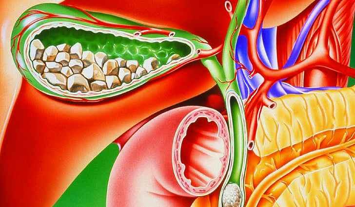желчнокаменная болезнь, диета при желчнокаменной болезни, диета при желчнокаменной болезни желчного пузыря, желчнокаменная болезнь симптомы, обострение желчнокаменной болезни, желчнокаменная болезнь операция, желчнокаменная болезнь у женщин, питание при желчнокаменной болезни, что едят при желчнокаменной болезни, причины возникновения желчнокаменной болезни, осложнения желчнокаменной болезни