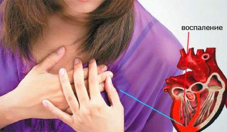 Миокардит - симптомы и лечение у взрослых