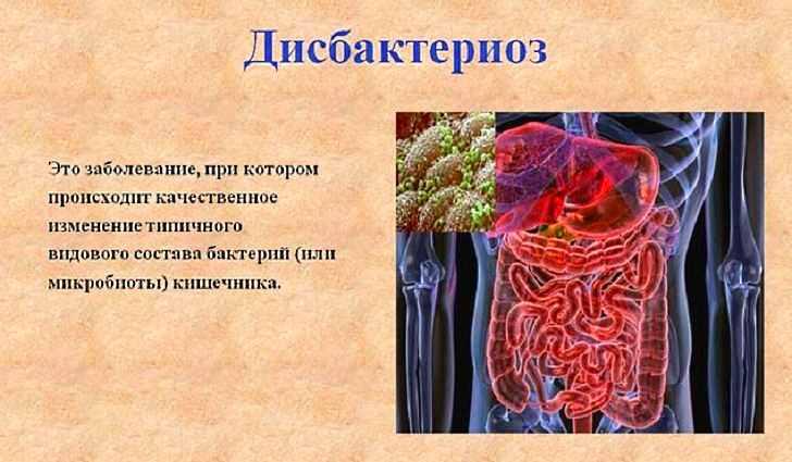 Итак, попробуем разобраться, что же такое дисбактериоз кишечника?