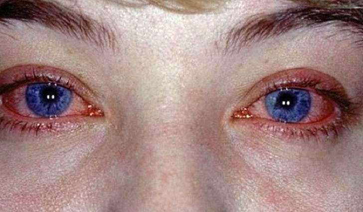 Что является причиной поллинозного конъюнктивита, методы лечения