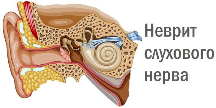 Как лечить кохлеарный неврит слухового нерва