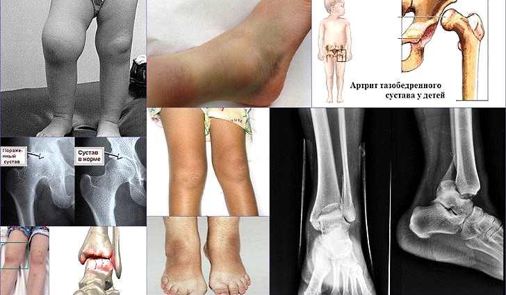 Лечение ревматоидного артрита, клинические рекомендации 2017