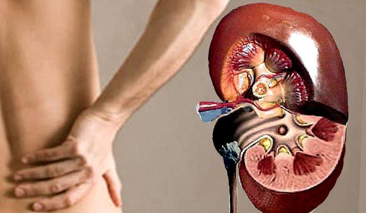 Как лечить мочекаменную болезнь у людей в домашних условиях