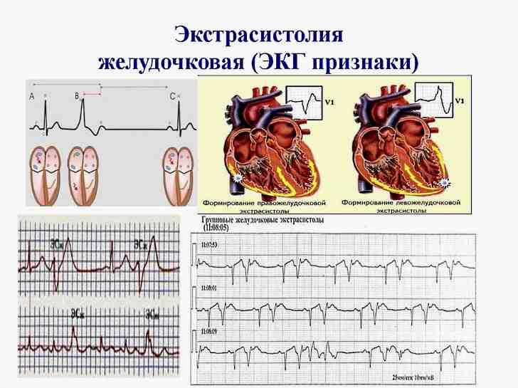 Что это такое экстрасистолия сердца и как лечить это заболевание
