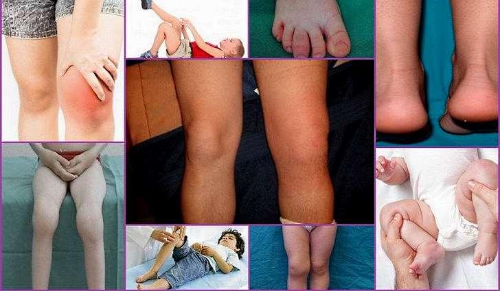 Реактивный артрит: причины симптомы и лечение