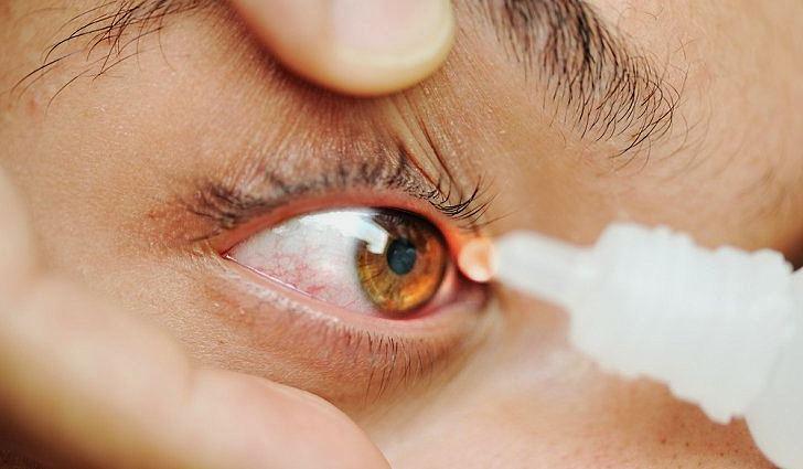 Фото синдрома сухого глаза