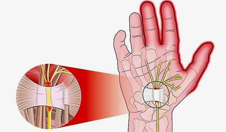 Синдром карпального канала кисти руки, лечение диагностика причины
