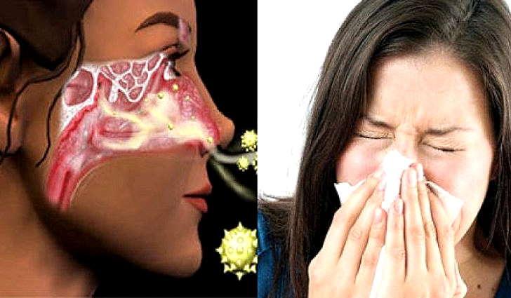 Аллергический ринит у взрослых: симптомы и лечение, препараты
