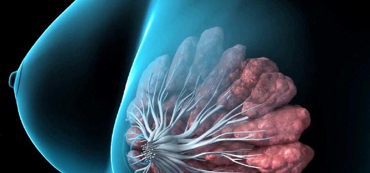 Кисты в молочных железах: причины и лечение