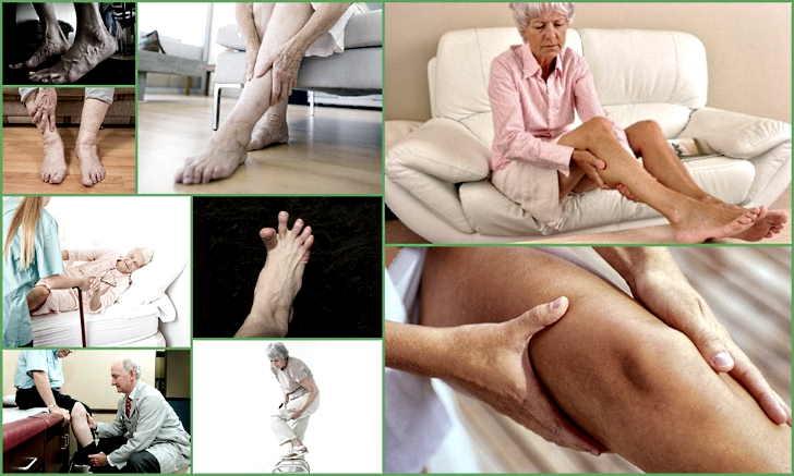 Ночные судороги в ногах, причины и лечение