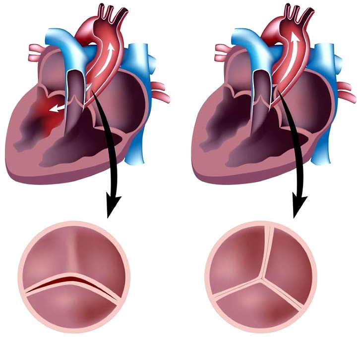 Аортальный стеноз: клинические рекомендации 2019