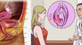 Бартолинит у женщин: симптомы и лечение