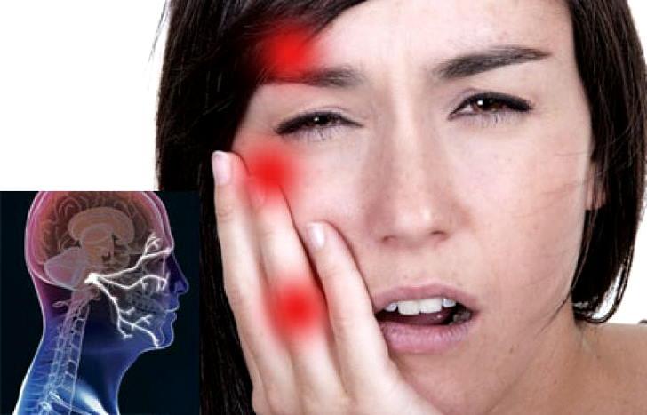 Что такое невралгия тройничного нерва лица