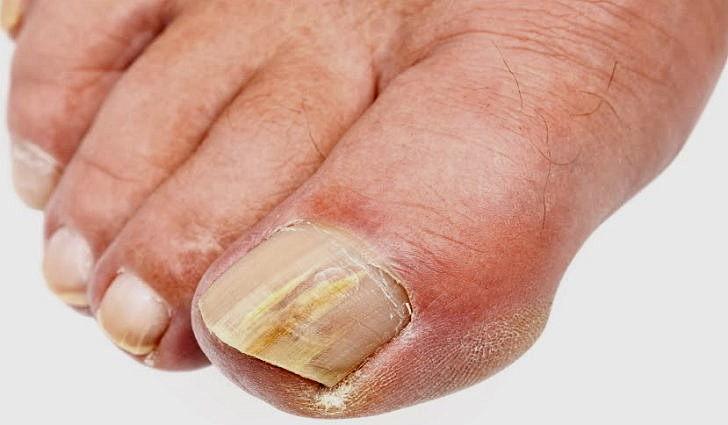 Как победить грибок ногтей на ногах и руках