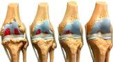 Что это такое гонартроз коленного сустава
