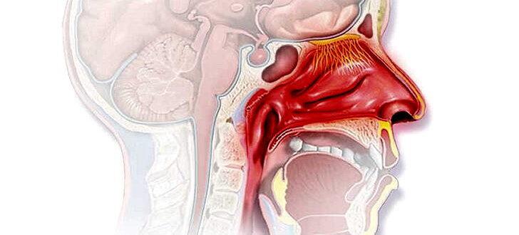 Острый ринофарингит - симптомы и лечение у взрослых