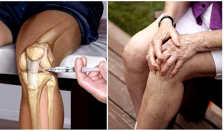 Характерные черты артрита при болезни Лайма