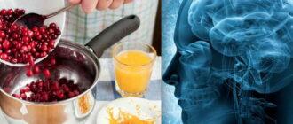 Народные средства лечения энцефалопатии