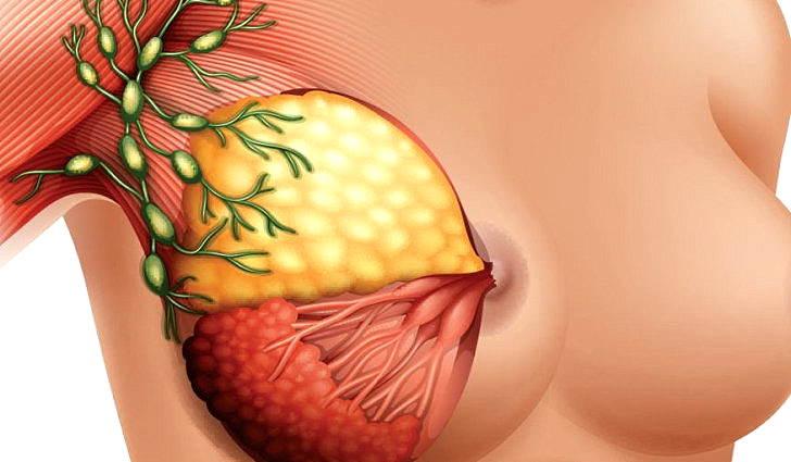 воспаление лимфоузлов в грудных железах у женщин симптомы и лечение
