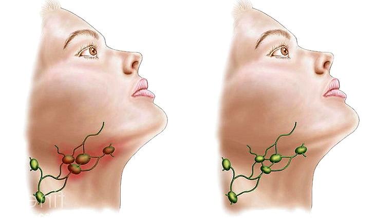 Воспалениеи лимфоузлов в горле причины и лечение