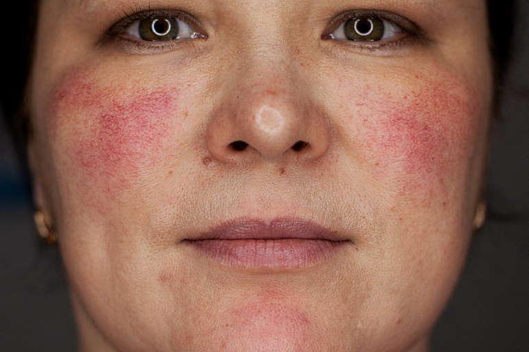 Чем лечить розацеа на лице, препараты, мази