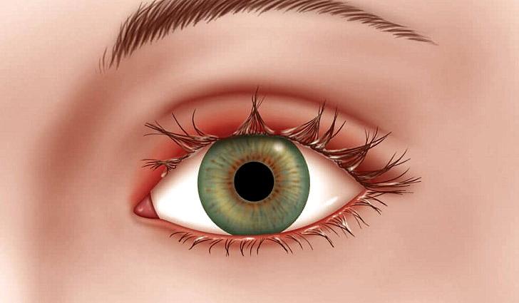 Как выглядит заболевание глаз блефарит