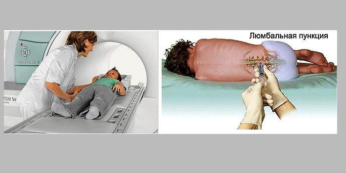 Диагностика менингита у детей