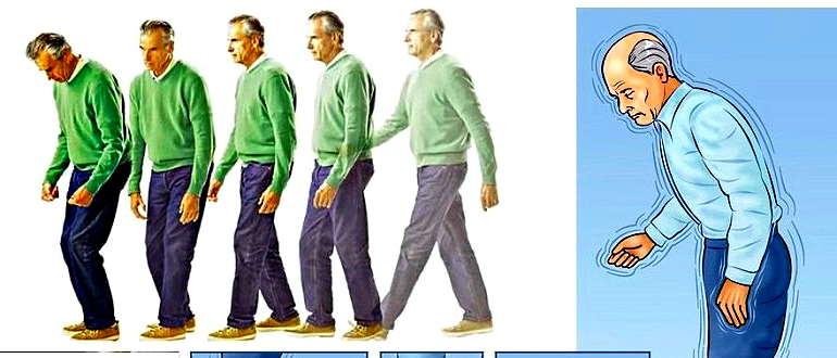 Болезнь Паркинсона симптомы и признаки у пожилых женщин
