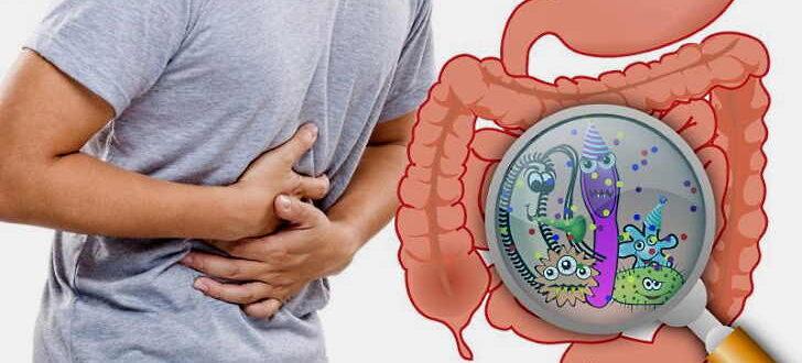 Что такое дисбактериоз кишечника у взрослых, симптомы и лечение
